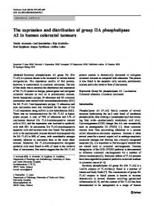 The expression and distribution of group IIA phospholipase A2 in human colorectal tumours